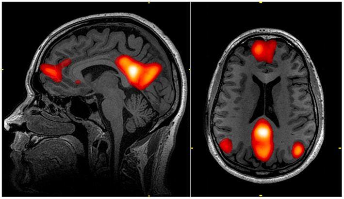 شبكة النمط التلقائي: شيفرة عالمية في أدمغتنا تحدد ما نراه جميلًا كيف يحدد الدماغ ما هو جميل تشكيل الأفكار الداخلية والعمليات العقلية المتعلقة بالتأمل الذاتي