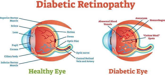 اعتلال الشبكية السكري الأسباب والأعراض والتشخيص والعلاج علاج اعتلال الشبكية السكري مشاكل في الرؤية الأوعية الدموية في العين