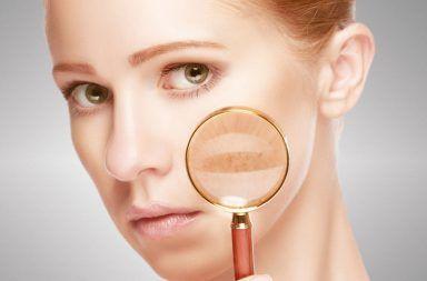 الذئبة القرصية الأسباب والأعراض والتشخيص والعلاج طفح جلدي أحمر على الجسم يهاجم الجهاز المناعي الجلد السليم تقرحات على الجلد