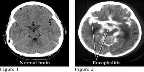 التهاب الدماغ عدوى فيروسية الخمج الفيروسي جهاز المناعة الصداع