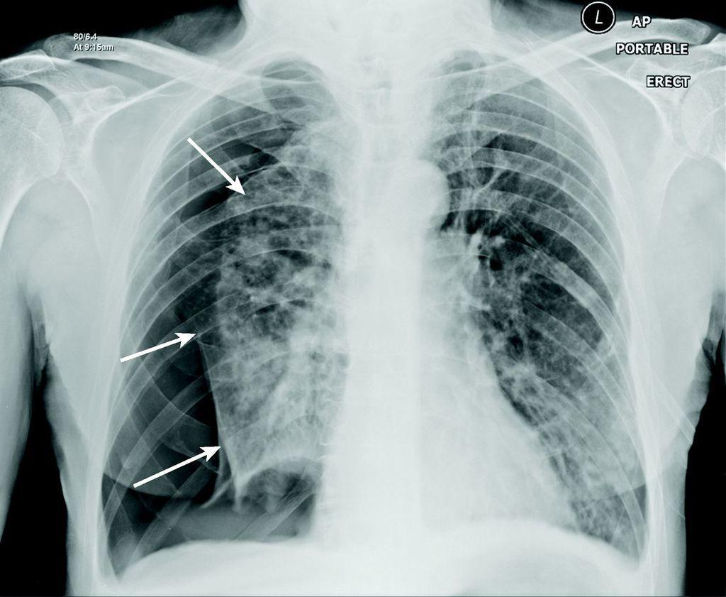 استرواح الصدر والمعروف بانكماش الرئتين: الأسباب والأعراض والتشخيص والعلاج تلامس الرئتان جدار الصدر الهواء المسافة بين جدار الصدر والرئة
