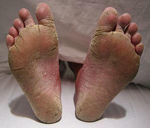 أعراض سعفة القدم علاج سعفة القدم الأعراض الأسباب التشخيص العلاج المشي بدون أحذية القوباء الحلقية للقدم الإكزيما الجلدية الجلد الفطريات