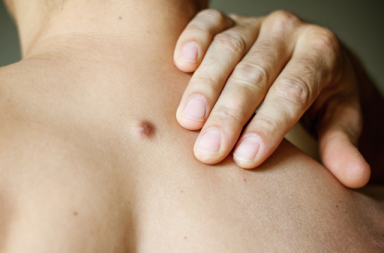 سرطان الخلايا الحرشفية الجلدي: الأسباب والأعراض والتشخيص والعلاج - Squamous cell carcinoma of the skin - شكل شائع من سرطان الجلد