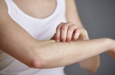 كثرة الخلايا البدينة (Mastocytosis) حالة نادرة يحصل فيها زيادة كبيرة في عدد الخلايا البدينة داخل أنسجة الجسم ما هي الخلايا البدينة