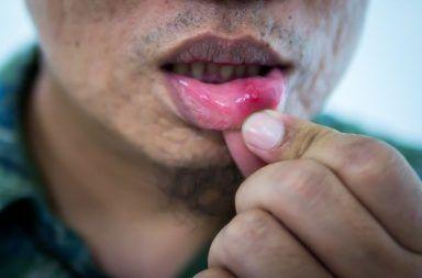 التهاب الفم: الأسباب والأعراض والتشخيص والعلاج التهاب يصيب الفم ويؤثر على الأغشية المخاطية الغشاء الرقيق المبطن للفم الجهاز الهضمي