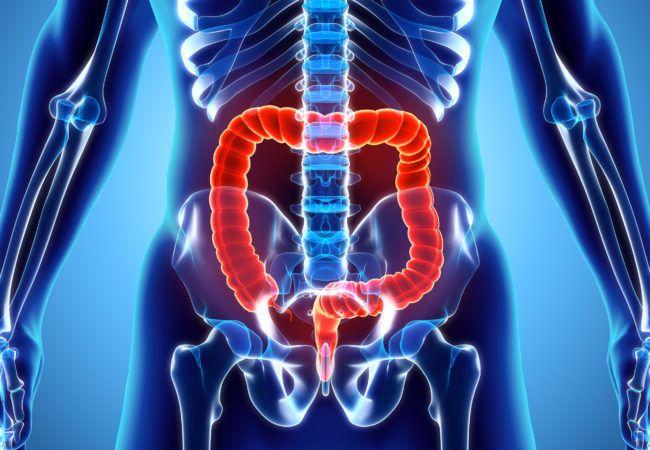 متلازمة أوغيلفي انسداد القولون الكاذب الحاد الأعراض الوقاية النشخيص العلاج الأسباب الأمعاء الدقيقة في البطن القولون الجراحة