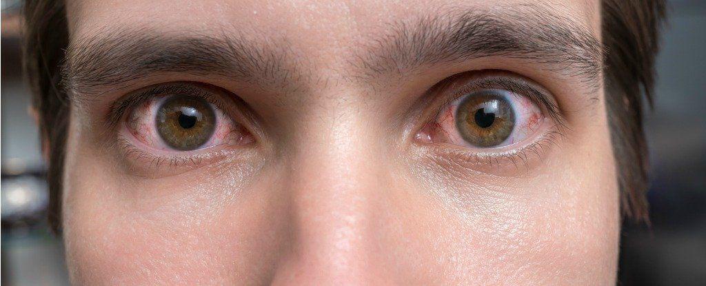 رعشة العين.. هل يجب عليك القلق منها؟