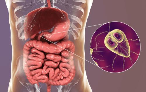 عدوى الجيارديا (الجيارديات): الأسباب والأعراض والتشخيص والعلاج