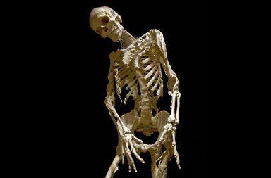 العلماء يكتشفون الخلايا المسؤولة عن متلازمة الرجل الحجري Goldhamer-eastlack-feature-image-384x253