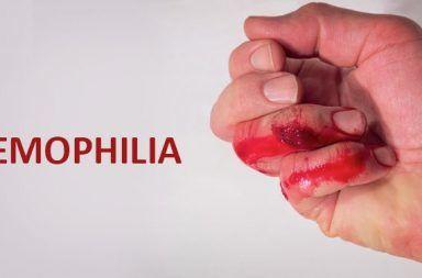 الناعور A أو الهيموفيليا A الأسباب والأعراض والتشخيص والعلاج غياب العامل الثامن تجلط الدم التخثر السيطرة على النزيف عوامل التخثر