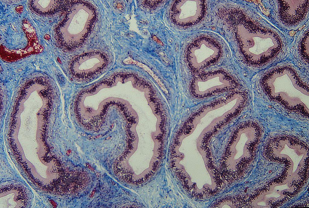 أنواع الأنسجة: النسيج الضام - تعريفه وأنواعه ومما يتكون وأمثلة عليه