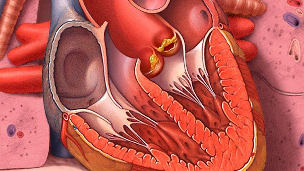 التهاب الشغاف : الأسباب والأعراض والتشخيص والعلاج