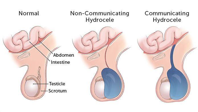 القيلة المائية أو الأدرة hydrocele: الأسباب والأعراض والتشخيص والعلاج هي كيس مملوء بسائل وتتشكل حول الخصية تورم صفني سرطان الخصية