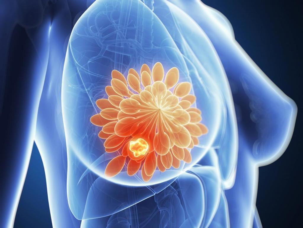 العوامل المؤهبة لظهور سرطان الثدي الأسباب التي تؤدي إلى الإصابة بسرطان الثدي العوامل التي تزيد احتمالية الإصابة بالسرطان العلاج الهرموني
