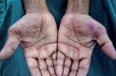 الحمامى المرتفعة الدائمة الأسباب والاعراض والتشخيص والعلاج علاج الحمامى المرتفعة الدائمة التهاب الأوعية الناخر ظهر اليدين المفاصل