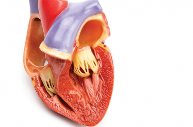 التهاب غشاء التامور Pericarditis الأسباب والأعراض والتشخيص والعلاج التهاب التامور انصباب التامور التهاب الغشاء المحيط بالقلب