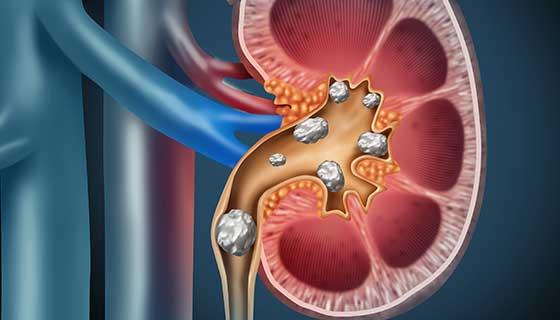 حصيات الكلية: الأسباب والأعراض والتشخيص والعلاج - كتل صلبة مؤلفة من بلورات تتشكل عادةً في الكلية - السبيل البولي - وجود الحصى في الكلى