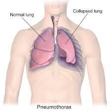 عأسباب انخماص الرئة ما هي أعراض الانخماص الرؤوي وما طرق علاجه الطريق التنفسية الصدر الأسناخ الهواء صعوبة في التنفس انضغاط الرئة