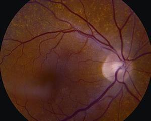 الاعتلال العصبي البصري الأمامي AION: الأسباب والأعراض والتشخيص والعلاج الاعتلال البصري الشرياني فقدان مفاجئ للرؤية العصب البصري
