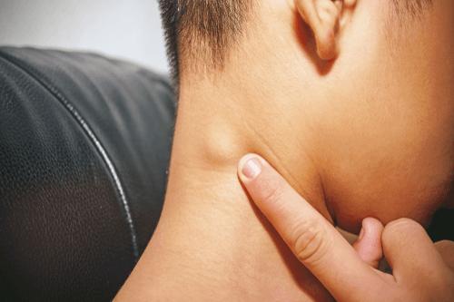 اللمفومة اللاهودجكينية Non-Hodgkin lymphoma