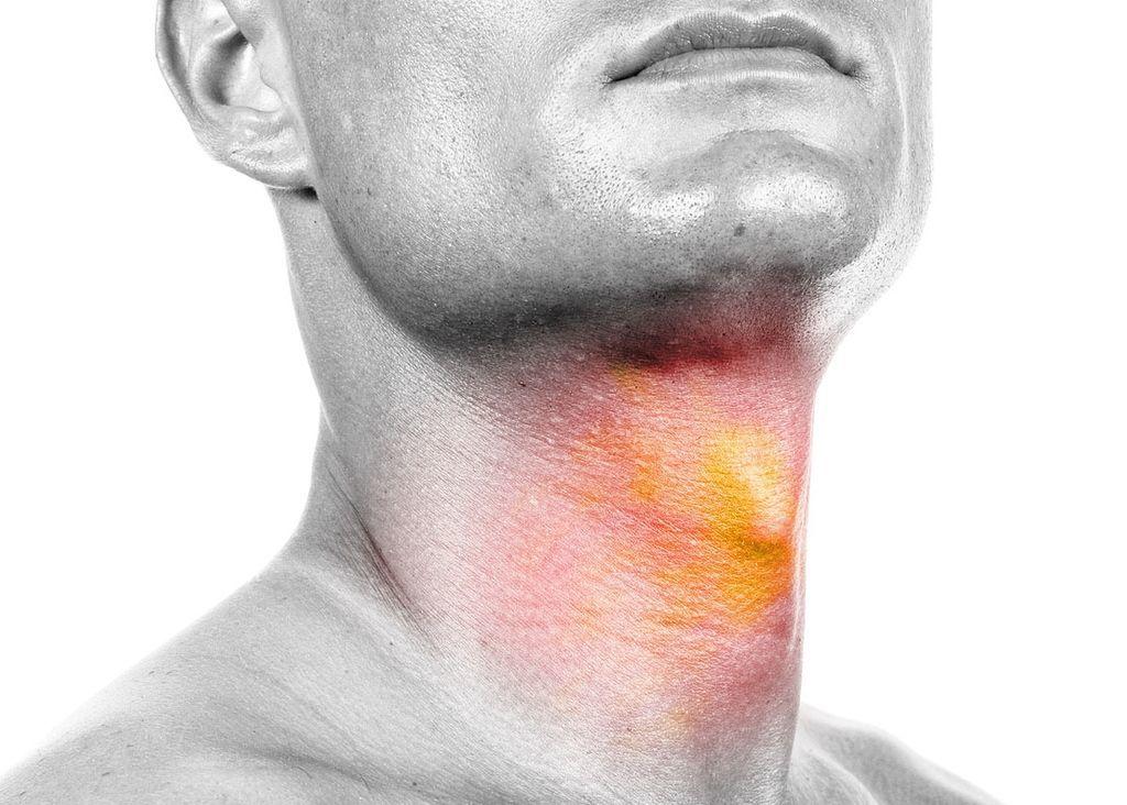 سرطانات الرأس والرقبة: الأسباب والأعراض والتشخيص والعلاج