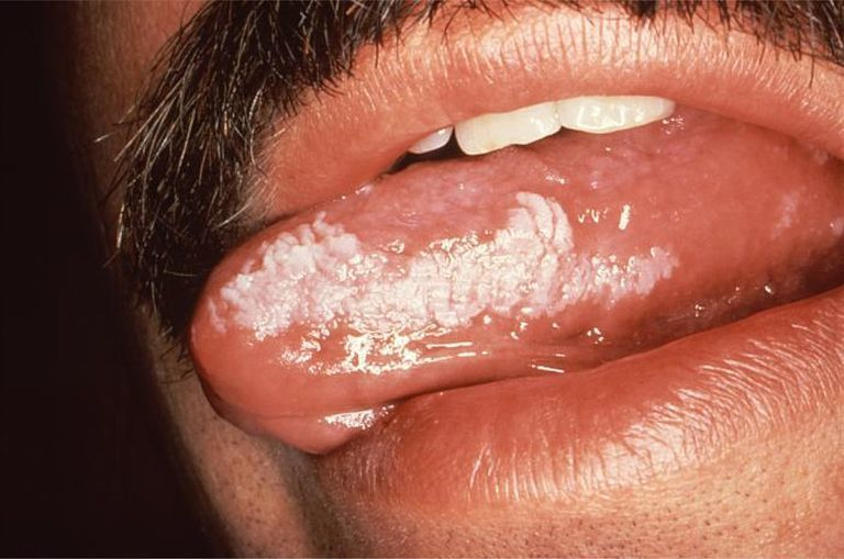 Oral hairy leukoplakia and picture new