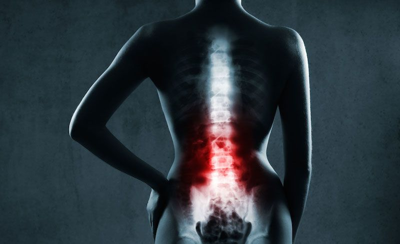 أعراض التهاب الفقرات التصلبي علاج التهاب الفقرات التصلبي أمراض العمود الفقري الأمراض التي تصيب المفاصل المرض العظام المفاصل