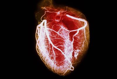 امراض القلب - الجزء الثاني -
