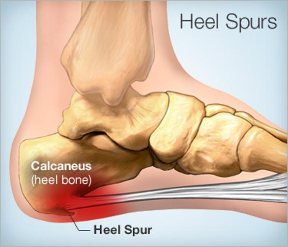 نتوءات العظام أو التنبت العظمي.. كل ما تحتاج إلى معرفته - الأسباب والأعراض والتشخيص والعلاج - بروزات ناعمة تمتد من العظام