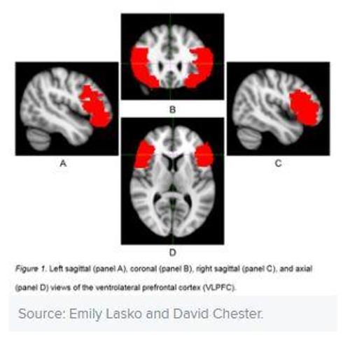 هل يملك المريض السايكوباتي الناجح ميزات دماغية؟ - هل يتفوق السايكوباتيون في ذكائهم على غيرهم - ما الذي يجعل السايكوباتيين ناجحين