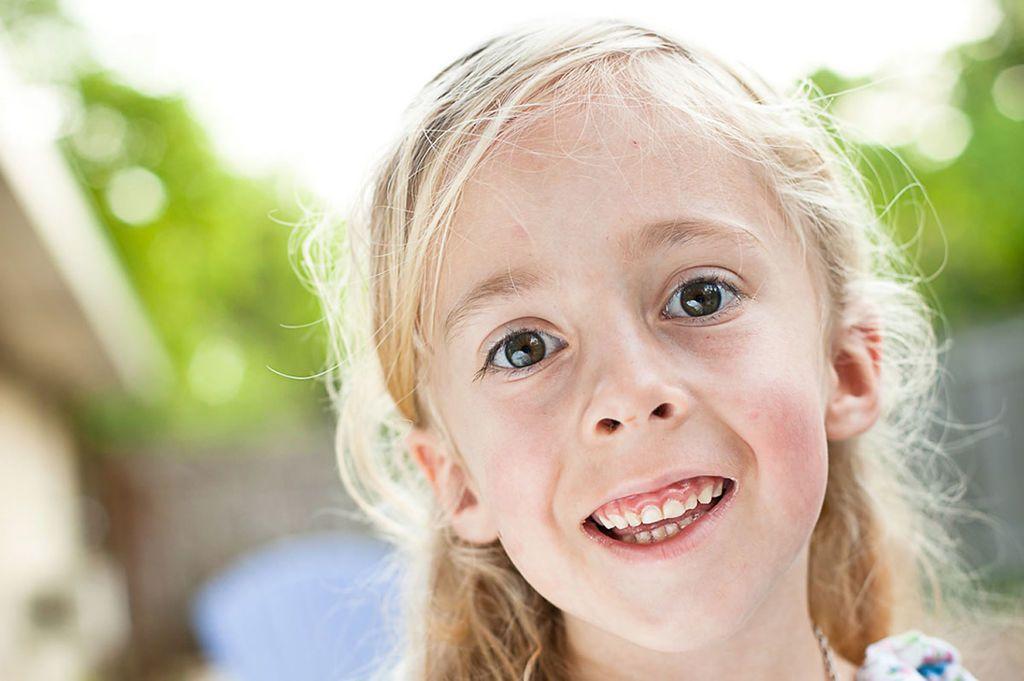 فتاة مصابة ب متلازمة برادر ويلي