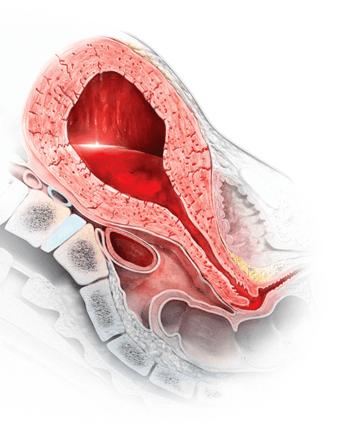 النزف التالي للوضع: الأسباب والأعراض والتشخيص والعلاج الولادة القيصرية أكثر ما يحدث بعد قطع المشيمية وبقائها ضمن الرحم تخليص المشيمة
