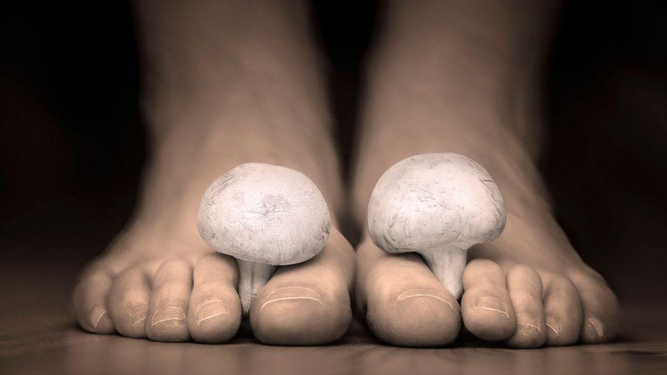 سعفة القدم : الأسباب والأعراض والتشخيص والعلاج