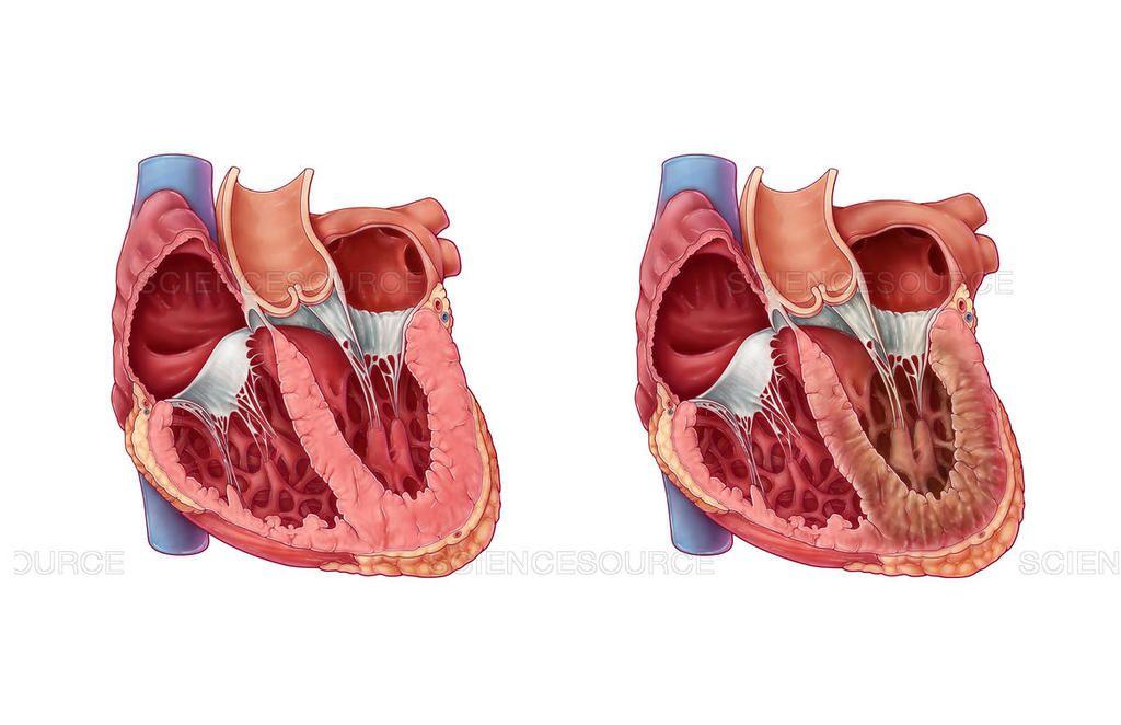 اعتلال عضلة القلب المقيد: الأسباب والأعراض والتشخيص والعلاج