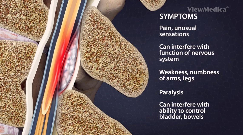 الخراج فوق الجافية: الأسباب والأعراض والتشخيص والعلاج إنتان يتشكل في المسافة بين عظام الجمجمة وحدود الدماغ داخل القحف الحبل الشوكي