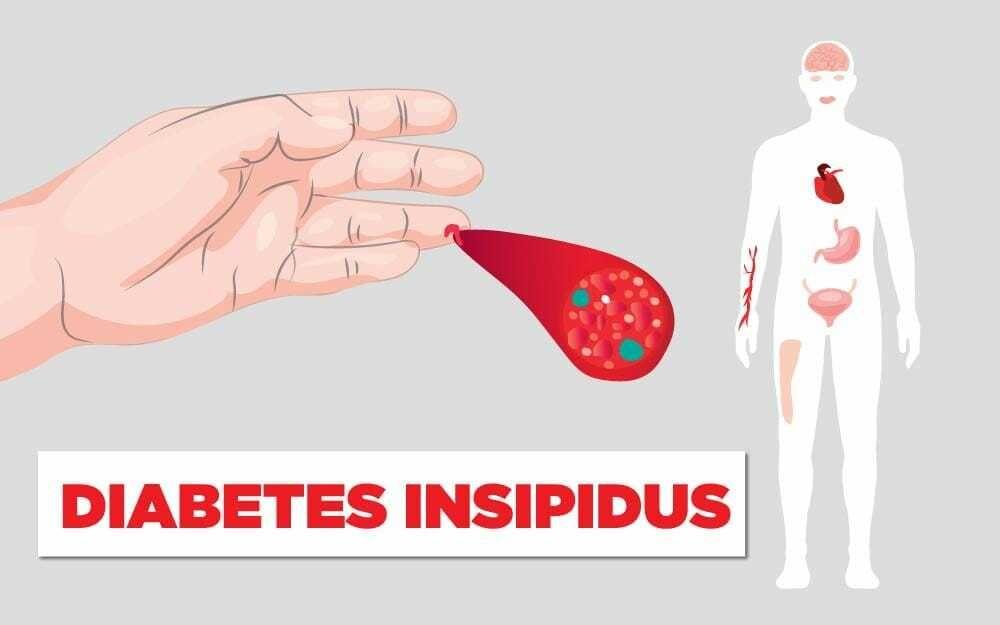 4d57655d7 السكري الكاذب: الأسباب والأعراض والتشخيص والعلاج - أنا أصدق العلم