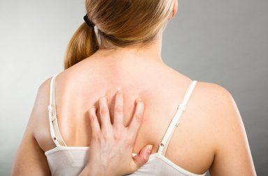سعفة الجسم: الأسباب والأعراض والتشخيص والعلاج - عدوى جلدية تسببها الفطريات - شكل الطفح الجلدي - فروة الرأس والفخذين والكفين وباطن القدمين