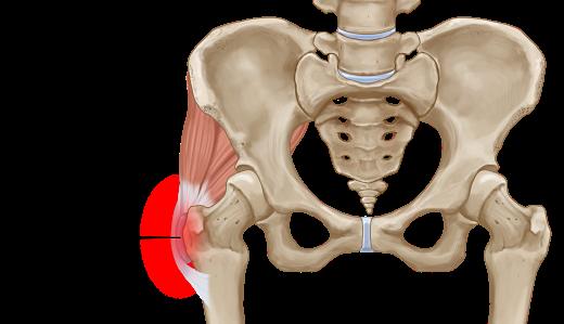 التهاب الجراب المدوري: الأسباب والأعراض والتشخيص والعلاج - الألم الناتج عن التهاب الكيس المليء بالسائل - الجانب الخارجي للورك