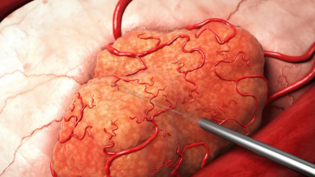ما الفرق بين الأورام الحميدة الأورام الخبيثة الاورام السرطانية الحميدة الخلية السرطانية الخلايا التي تتحول إلى سرطان خلل في عمل الحمض النووي