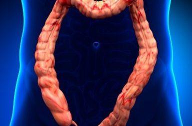 التهاب القولون التقرحي: الأسباب والأعراض والتشخيص والعلاج - أحد أمراض الأمعاء الالتهابية IBD - التهاب بطانة الأمعاء الغليظة (القولون) أو المستقيم