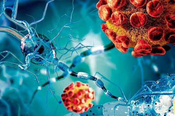 التهاب السحايا الفيروسي: الأسباب والأعراض والتشخيص والعلاج