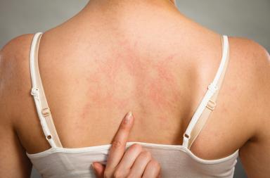 الشرى المزمن مجهول السبب: الأسباب والأعراض والتشخيص والعلاج - نتوءات حمراء مصحوبة بحكة على الجلد - حقنة إبينفرين epinephrine