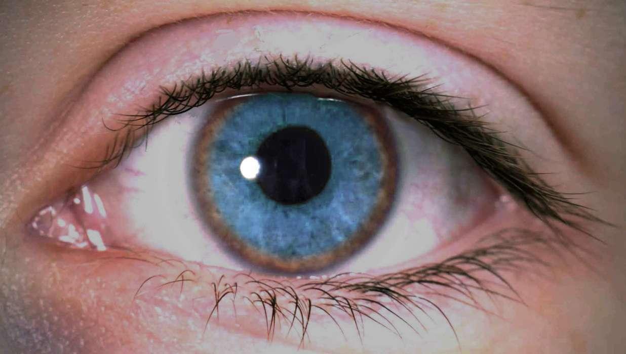 داء ويلسون: الأسباب والأعراض والتشخيص والعلاج