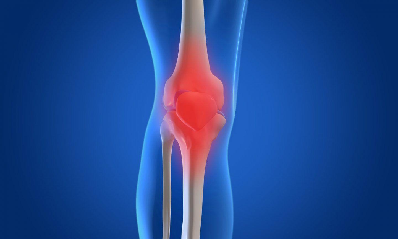 التهاب المفصل التنكسي أو الفصال العظمي