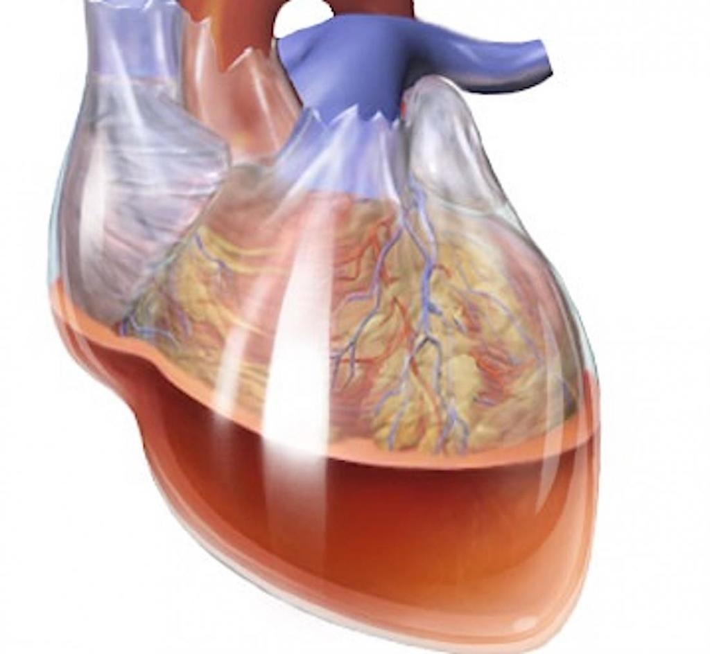 اندحاس القلب أو الدكاك القلبي cardiac tamponade الأسباب والأعراض والتشخيص والعلاج تراكم سائل حول عضلة القلب الاندحاس التاموري