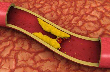 لماذا يحدث تصلب الشرايين مع التقدم بالعمر لماذا يصاب المسنون في العمر بتصلب الشرايين ترسب الكالسيوم أسباب تصلب الأوعية الدموية