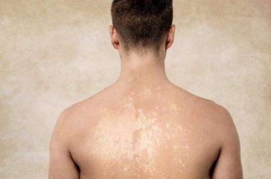 ما هي السعفة المبرقشة وكيف تعالج Tinea Versicolor هي إصابة جلدية بأحد أنواع فطور الملاسيزيا يدعى الملاسيزيا النخالية Malassezia Furfur