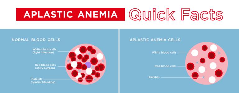 أعراض فقر الدم اللا تنسجي علاج فقر الدم اللا تنسجي الأسباب الأعراض التشخيص العلاج نخاع العظام خلايا الدم الحمراء الخلايا الجذعية نخاع العظم