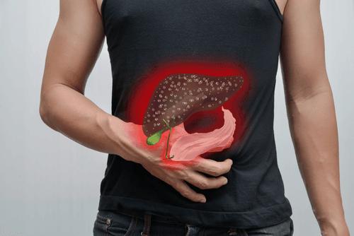 التهاب المرارة: الأسباب والأعراض والتشخيص والعلاج