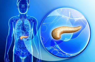 التهاب البنكرياس المزمن chronic pancreatitis الأسباب والأعراض والتشخيص والعلاج الهرمونات التي تساعد في هضم الأغذية عضو غدي موجود في البطن
